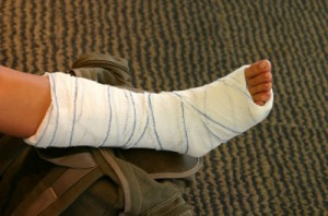 broken-bone
